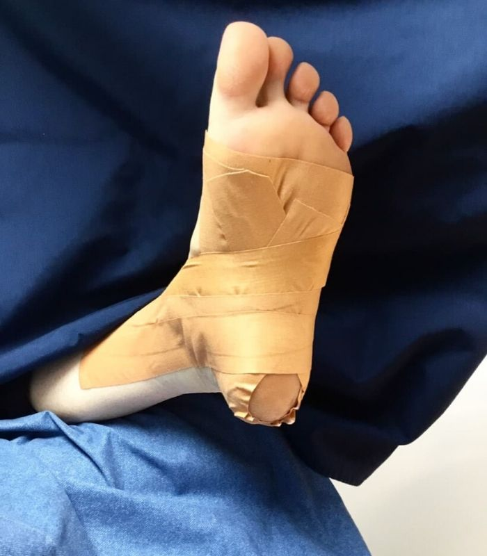 Low Dye Taping Upper James Foot Clinic