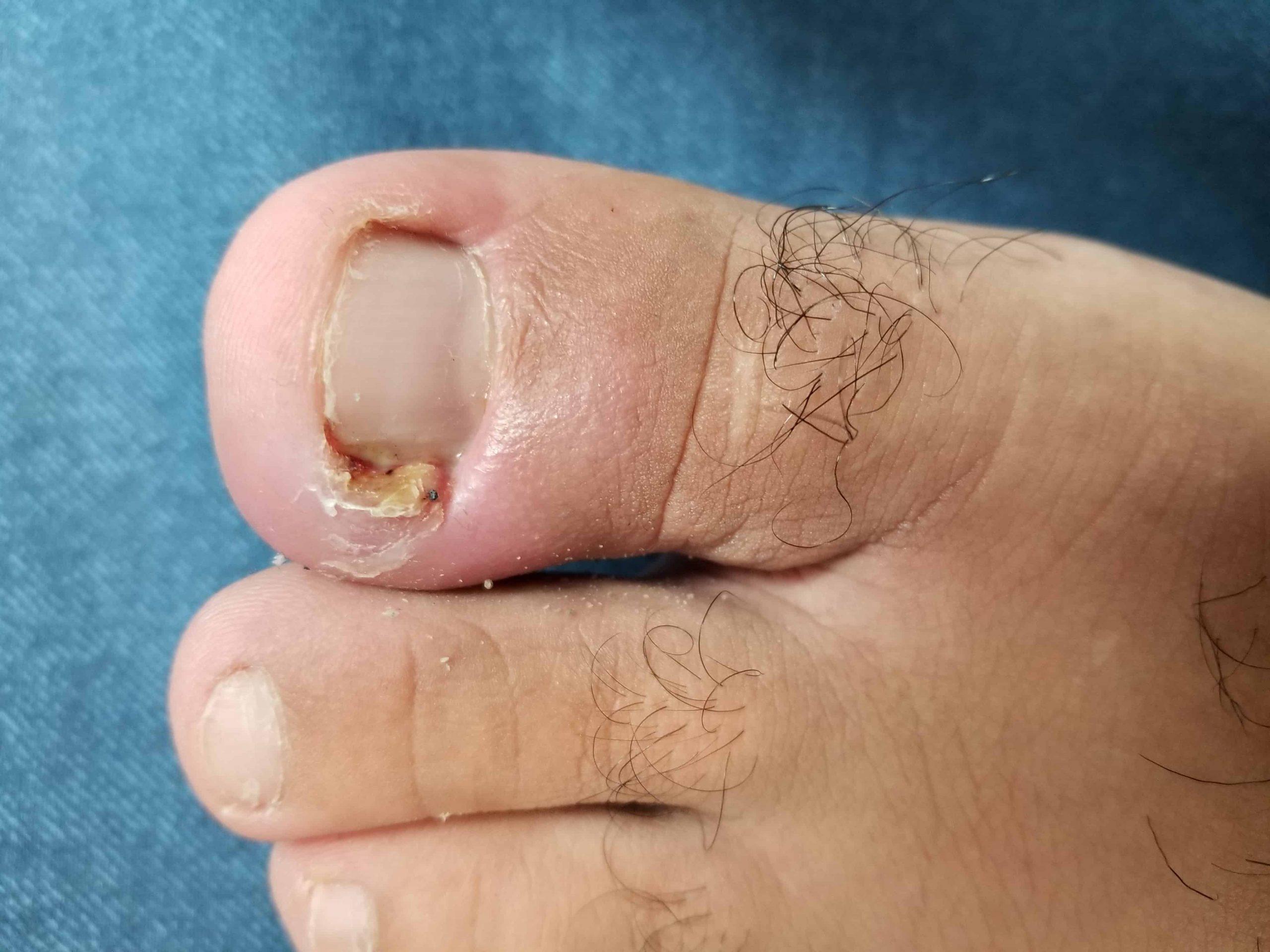 Upper James Foot Clinic Ingrown Toenail Care